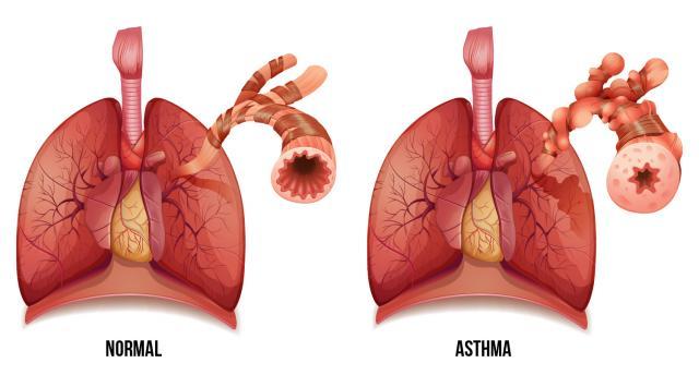 Резултат с изображение за астма